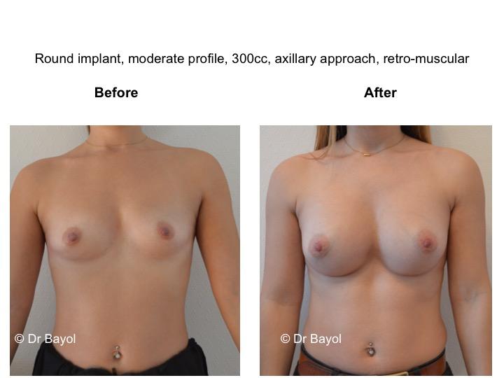 prothèses mammaires sion