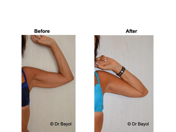 lifting des bras genève