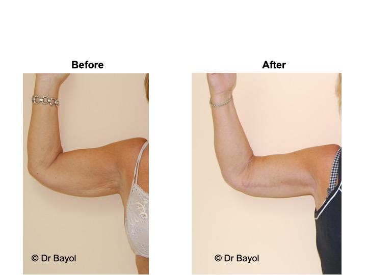plastie bras brachiale lausanne