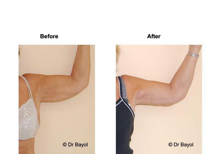 plastie bras brachiale genève