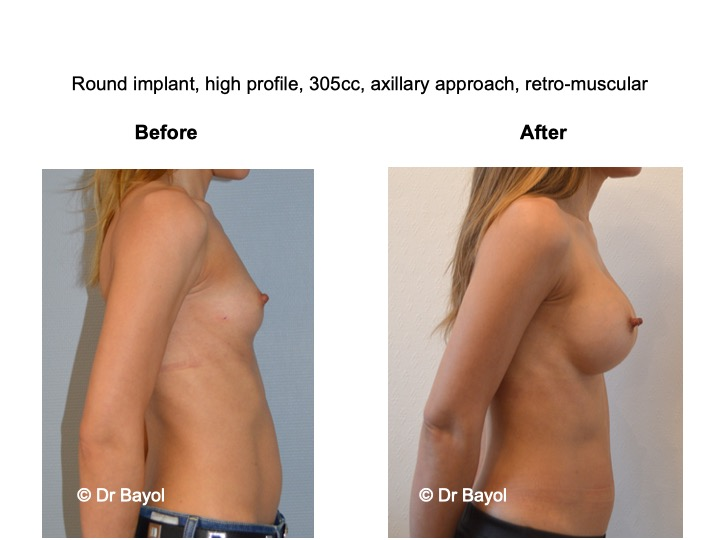 prothèses mammaires sebbin